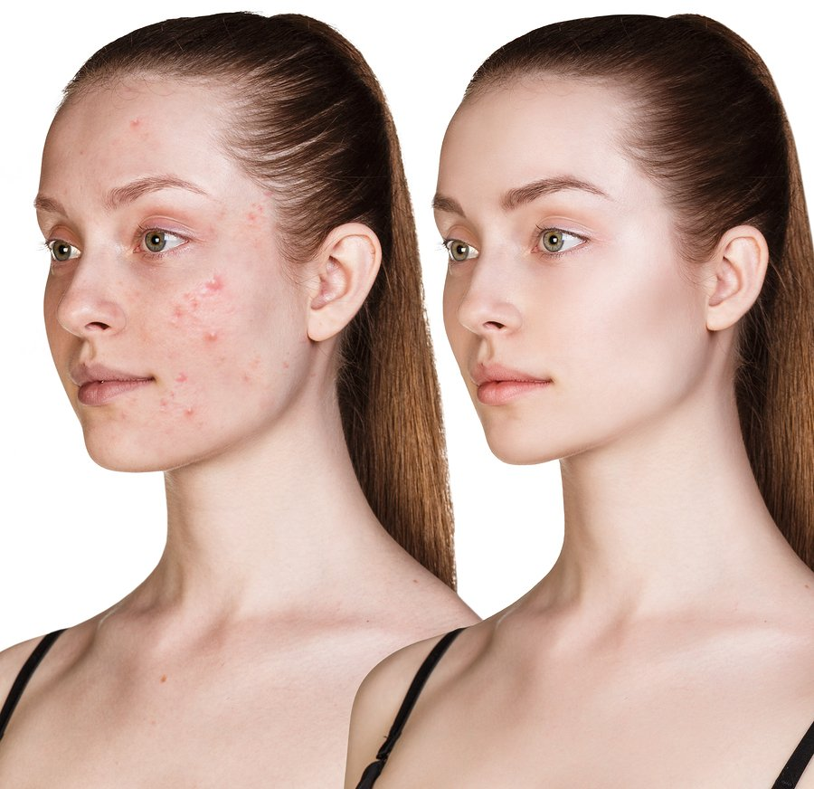 Acne Services