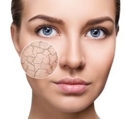 Zoom circle shows facial skin before moistening. Dry skin
