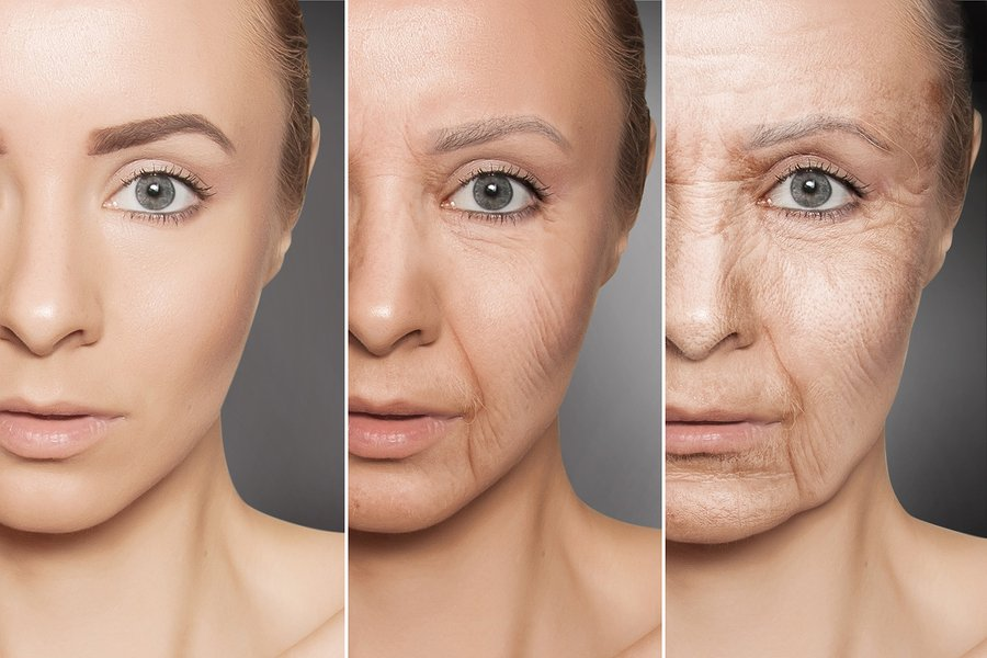 Wrinkles and Skin Inflammation