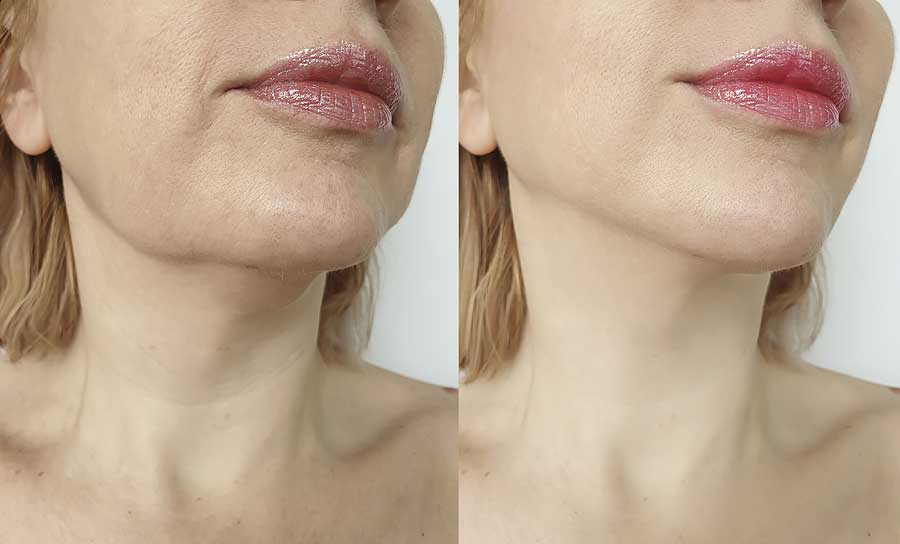 Before and After Chin line
