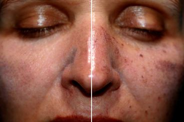 remove hyperpigmentation from your skin